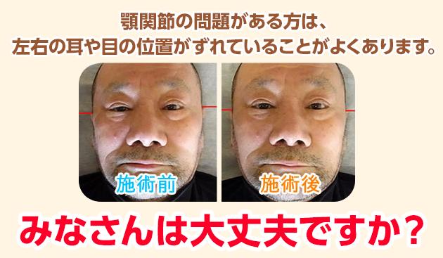 顎関節の問題がある方は、左右の耳や目の位置がずれていることがよくあります。みなさんは大丈夫ですか?