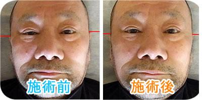 施術前と施術後の写真:男性